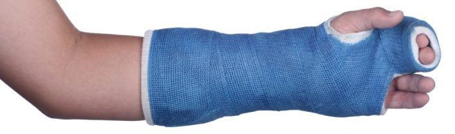broken-arm-cast-e1476044012748